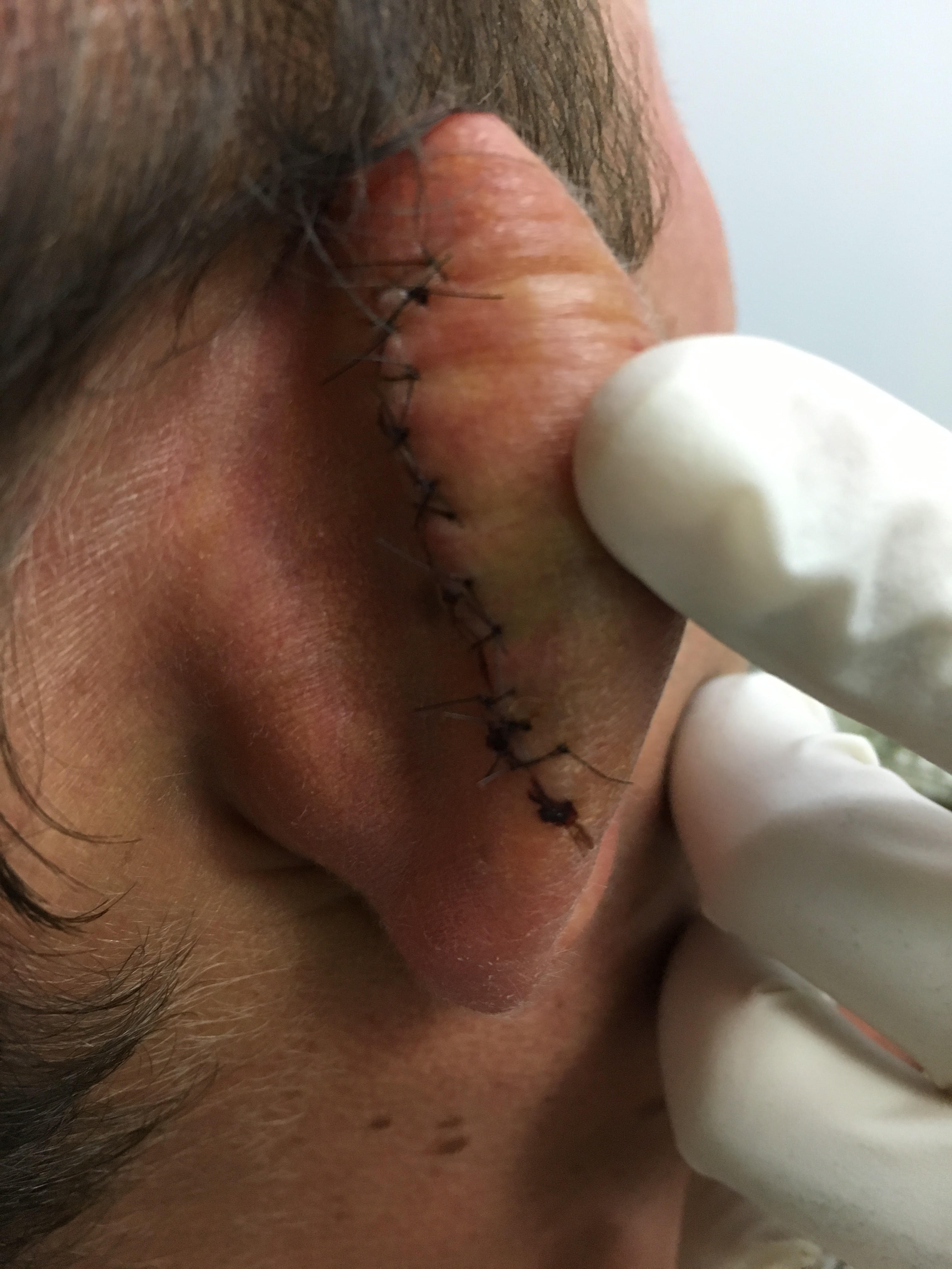 Stitches to Timothy's ear