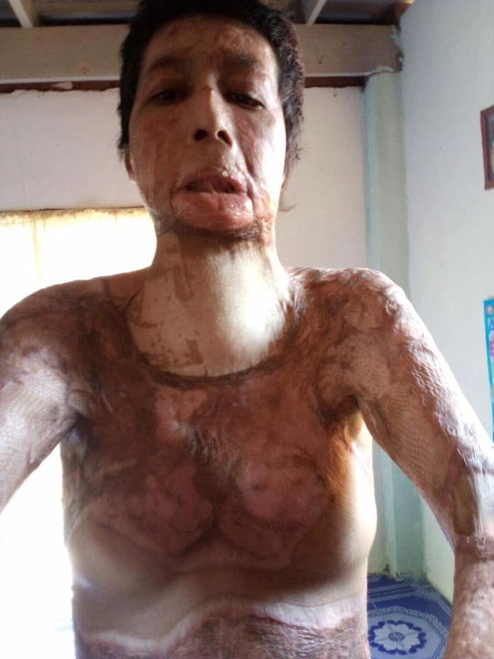 Nednapha Nuankhul after she was doused in petrol and set alight by her jealous husband