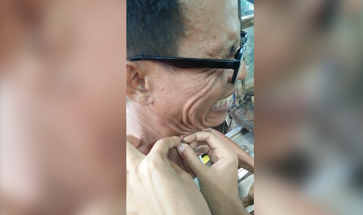 The blackhead is squeezed from the middle-aged man neck after he left it for for two decades