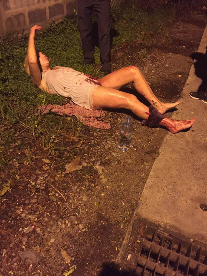 Elena Kharenko, 52, after she was shot in Phuket during a burglary