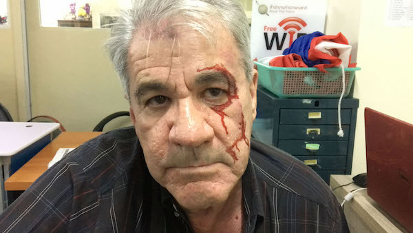 Guy Allison, 66, after his chef attacked him with a motorcycle helmet